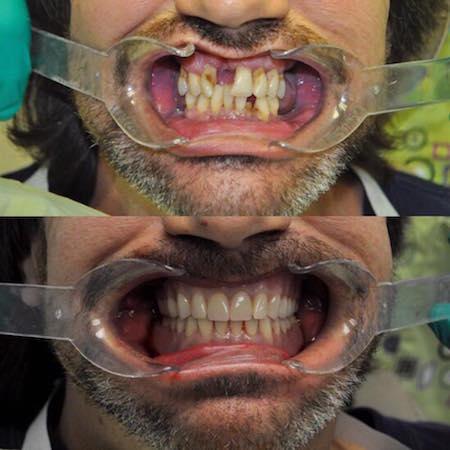 Dentures Las Vegas - NV, Cheap, Affordable Dentures, Repair